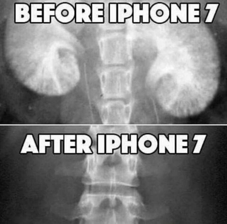 Before Iphone 7