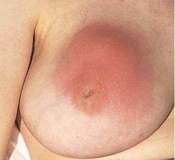 Breast Conditions