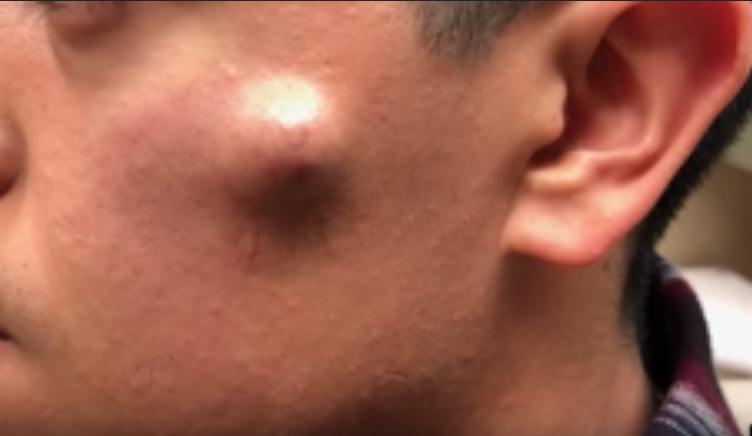 Face Cyst Removal