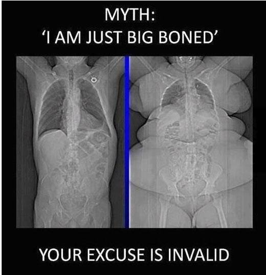 I Am Just Big Boned