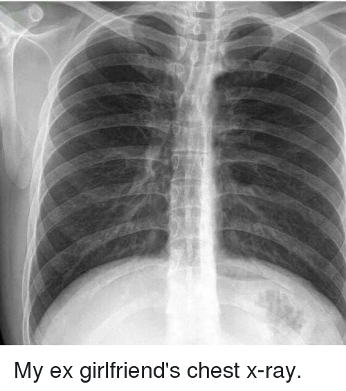 My Ex Girlfriend's Chest