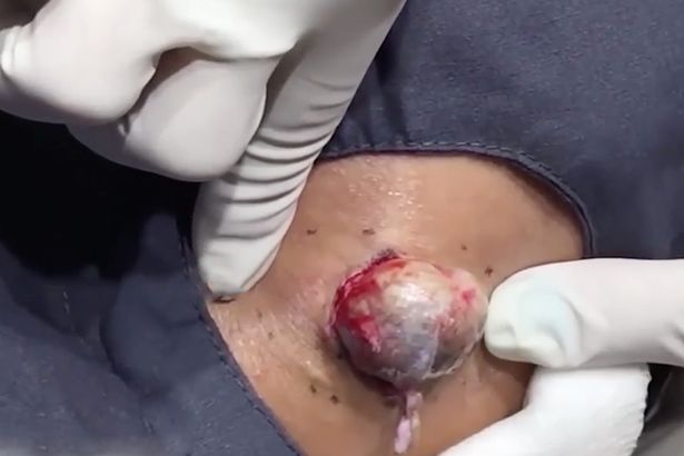Pimple The Size Of Egg Popped
