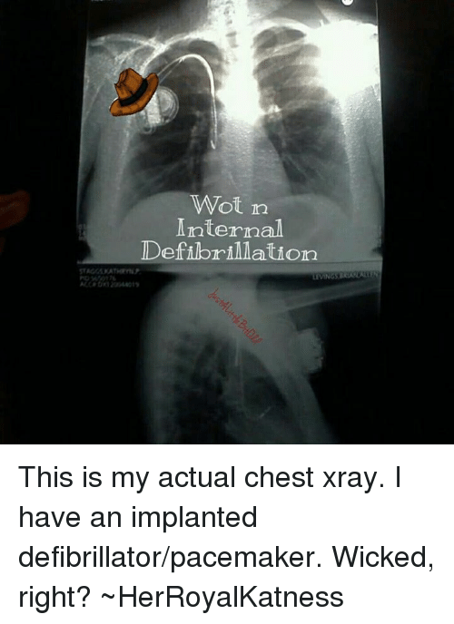 This Is My Actual Chest