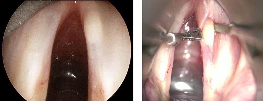 Vocal Fold Cyst Removed Under General Anaestheticusing