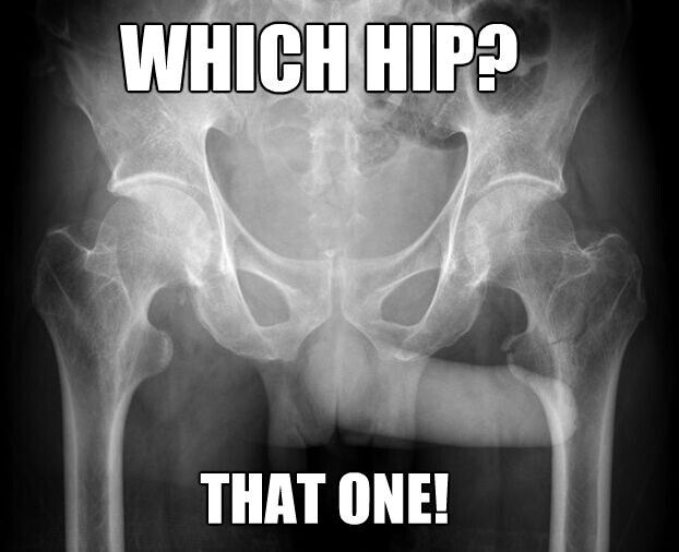 Which Hip