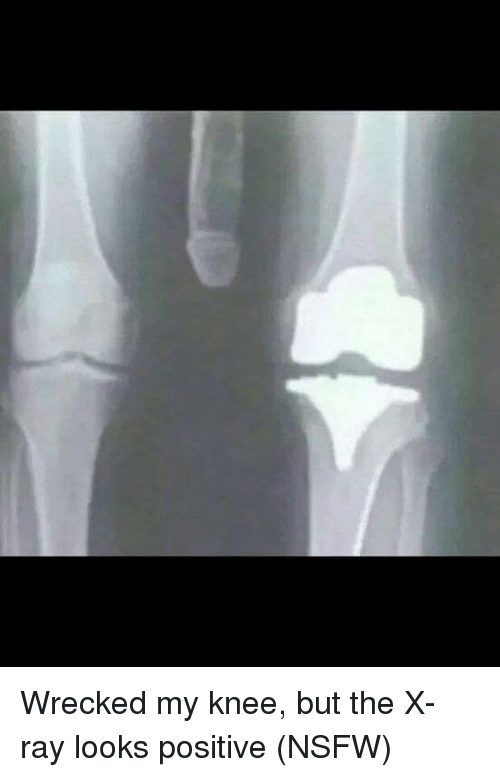 Wrecked My Knee